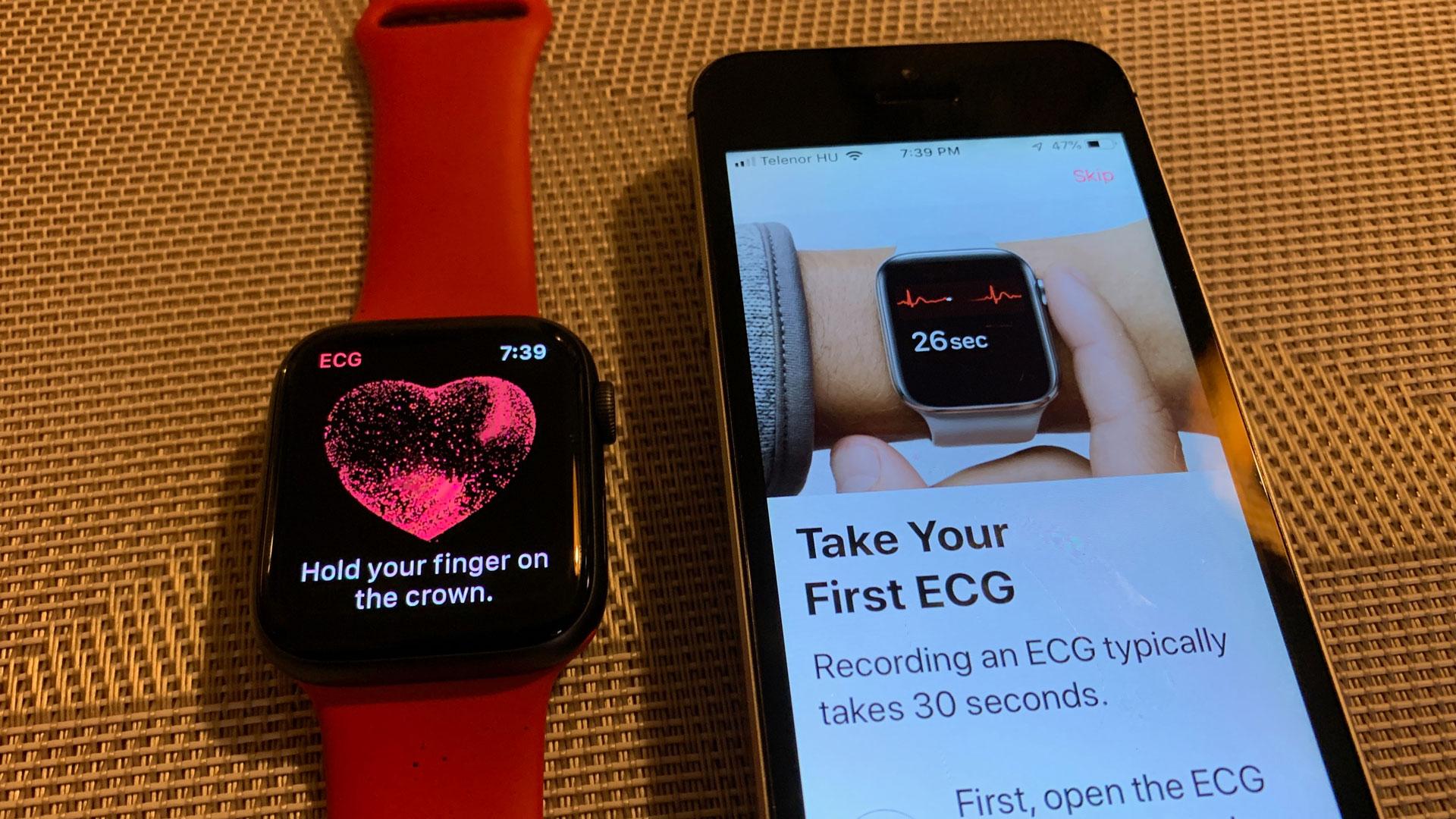 Magyarországon is működik az Apple Watch Series 4 EKG funkciója (amerikai órával)! [videó]